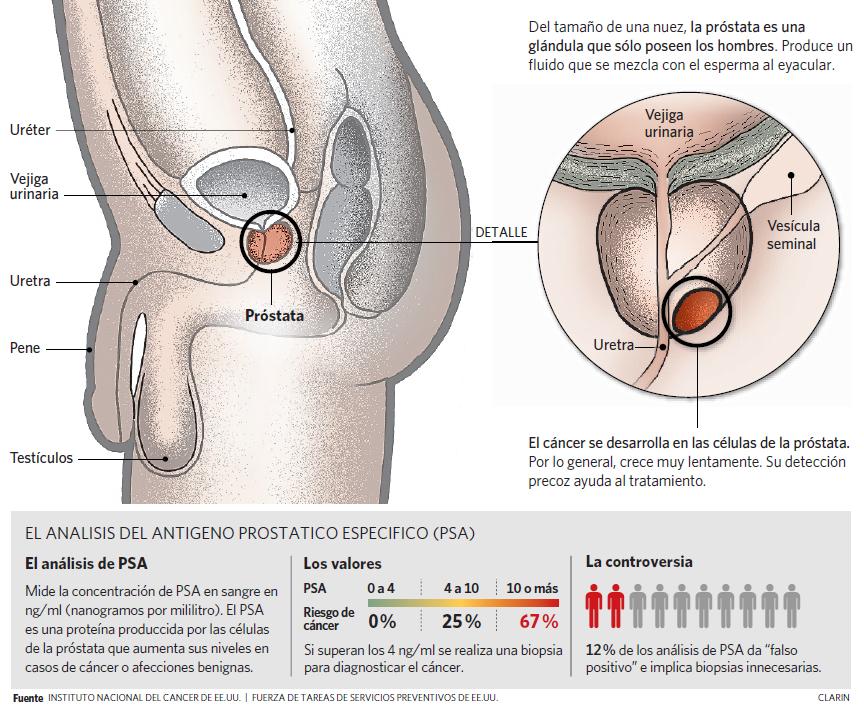 análisis de sangre del panel de próstata
